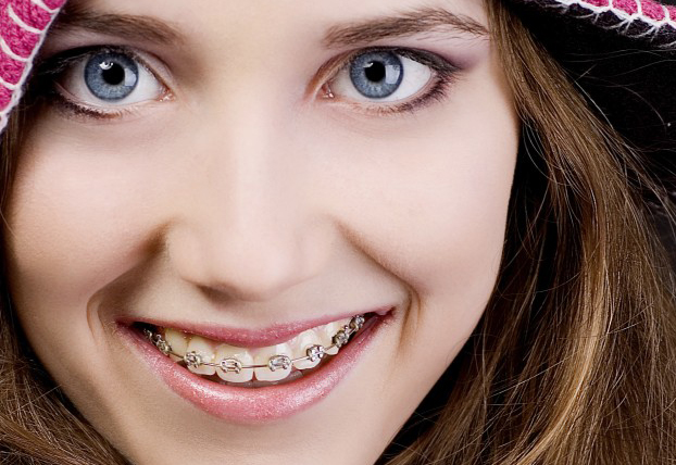 Eating with Braces