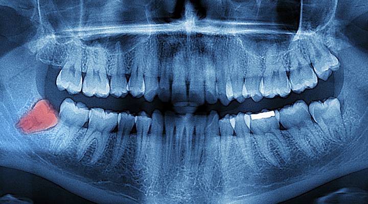 3 Things You Need to Know About Wisdom Teeth