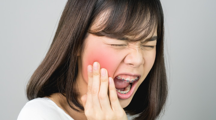 Pain Relief for Wisdom Teeth Naturally