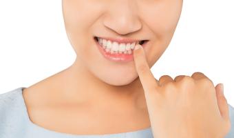 Breaking Bad Habits: Teeth Are Not Tools