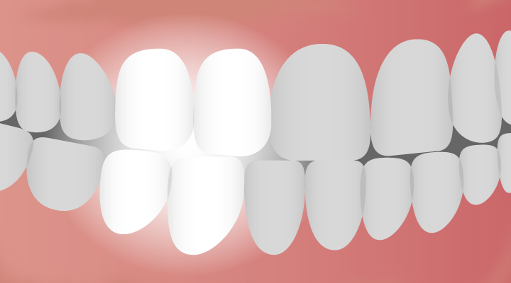 What are Bicuspids? The In-Between Premolar Tooth